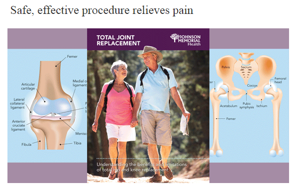 Download Joint Replacement Guide